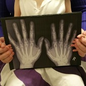 <span class=heading><b>Protecting the next generation</b> by Kirsty Ross</span><br />How do we protect future generations from the pain, joint destruction and premature death due to rheumatoid arthritis? In this image, my daughter Isla and I hold an X-ray of my father's arthritic hands. I want to understand when, where, how and why arthritis is triggered. This research will hopefully enable the development of new treatments to cure or even prevent the disease starting in the first place!<br /><span class=small>Image: © 2015 Kirsty Ross</span>. <span class=small>Collaborators: Dr Catherine Lawrence, Professor Iain McInnes, Isla Hutchison, Steven Hutchison</span>