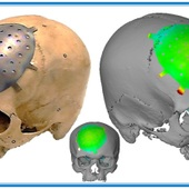 <span class=heading><b>Manufacturing new custom cranial implants</b> by Mohammad Salamati</span><br />Manufacturing tailored implants for patients is expensive and time consuming. Incremental Sheet Forming (ISF) is a fast and convenient way to shape titanium sheet to be used to repair head injuries and in reconstruction surgery. A collaboration between a local manufacturer (Pascoe Engineering Ltd), the AFRC and the Southern General Hospital has developed a manufacturing process to shape a flat titanium sheet accurately into a replacement cranial implant.<br /><span class=small>Image: &copy; 2015 Mohammad Salamati</span>. &nbsp;<span class=small>Collaborators: Pascoe Engineering, Southern General Hospital</span>